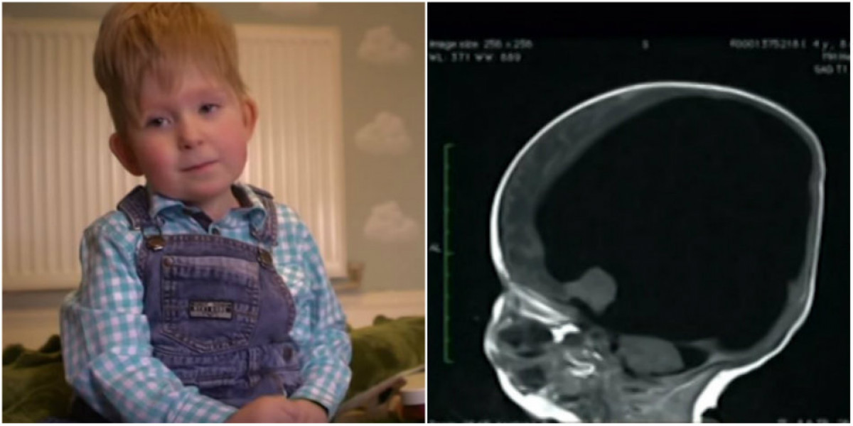 S-a nascut FARA CREIER si a supravietuit. E ireal cum organul i-a crescut de la sine. Ce spun medicii despre acest caz rar VIDEO