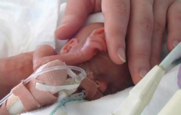 S-a nascut la 600 de grame si a trait. Dar cum a ajuns sa arate acest bebelus e trist