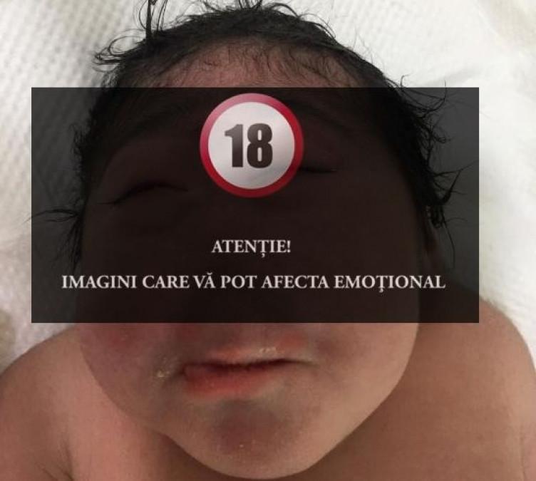 IREAL! Un bebe s-a nascut FARA NAS! Familia refuza sa il opereze. Medicii sunt socati de acest caz rar