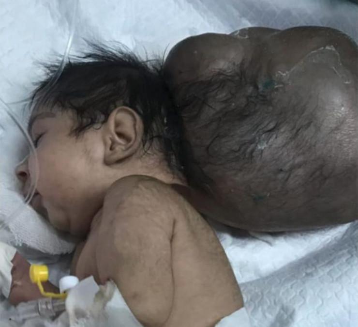 Bebelus cu doua capete, la un pas de moarte! A fost ingropat de viu, dar cineva l-a gasit