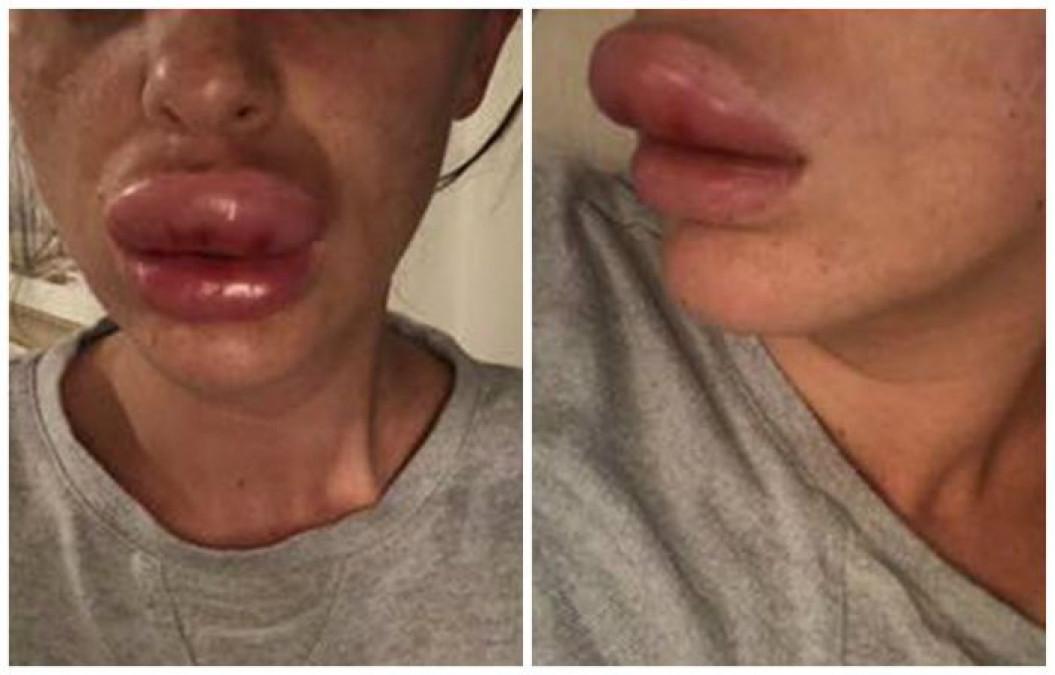 La un pas de MOARTE dupa ce si-a injectat buzele ca Bianca Dragusanu! E ireal ce a patit in mai putin de 2 ore